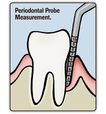 Periodontal Probe Measurements Roswell Alpharetta Fam...